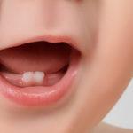 La dentición del bebé: síntomas y remedios caseros