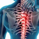Dolor en la parte posterior de la costilla síntomas y opciones de alivio