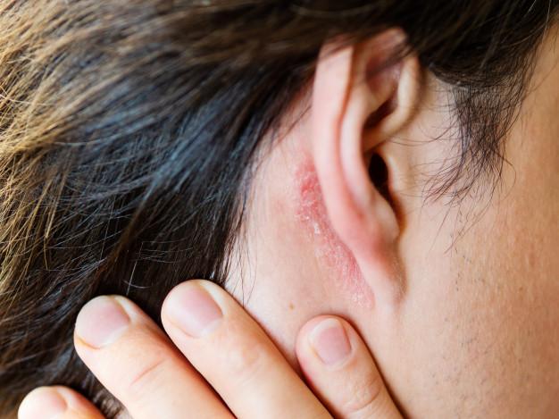dolor detrás de la oreja