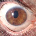 Causas, síntomas y tratamiento de la distrofia de Fuchs