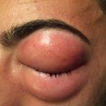 Golpe en el ojo (globo ocular)