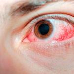 Vaso sanguíneo roto en el ojo (hemorragia subconjuntival)