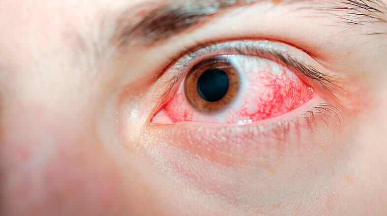hemorragia-subconjuntival