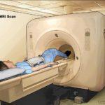 ¿Qué muestra la resonancia magnética
