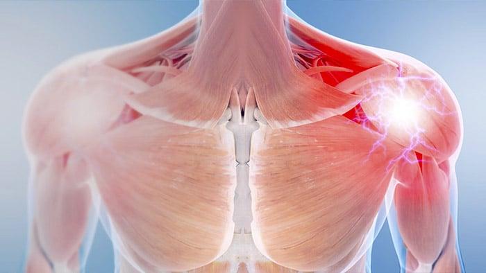 rehabilitacion-fisica-ejercicios-deltoides-cepa