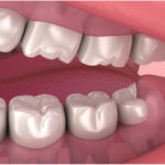 Puntadas de dientes de sabiduría