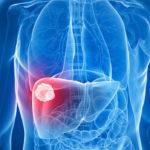 Tasa de supervivencia del cáncer de hígado por etapas y tratamiento