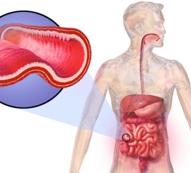 tratamiento-de-la-enfermedad-de-crohns