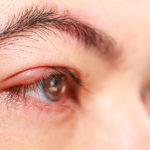 tratamiento-para-sty-in-eyelid