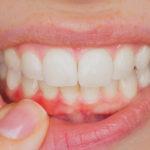 Alivio del dolor para la infección de las encías