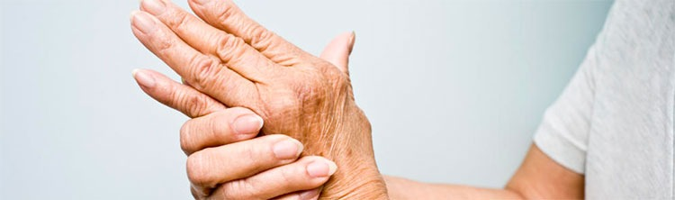 artritis-causas-sintomas-tratamiento