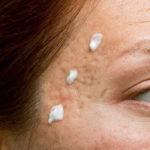 Bicarbonato de sodio para el acné