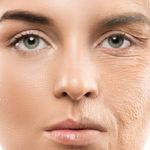 Cambios en la piel durante la menopausia piel seca y picazón