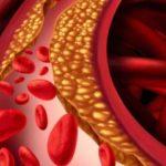 carbohidratos-niveles-de-colesterol