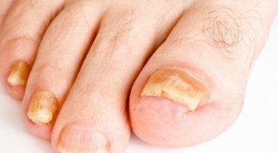 causas-engrosamiento-unas-de-los-pies