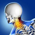 ¿Qué son las complicaciones de la fractura de la columna cervical?