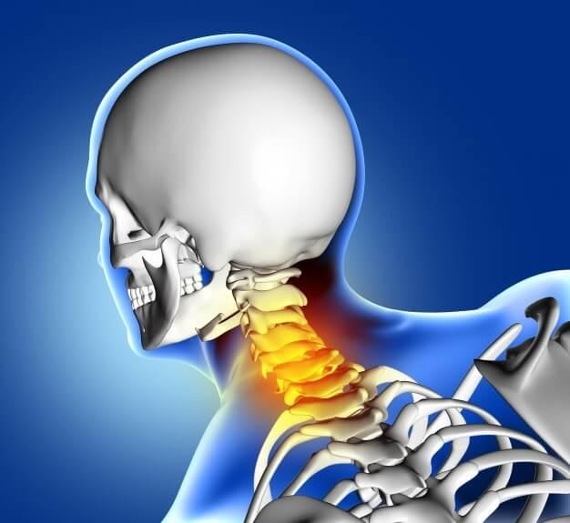 complicaciones-cervicales-espina-fractura