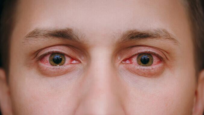 corneal-abrasion-causes-symptoms-tiempo-de-recuperacion