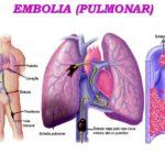 Embolia pulmonar Coágulo de sangre en los pulmones causas síntomas tratamiento