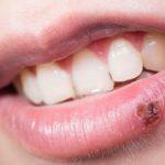 Herpes labial o herpes oral?