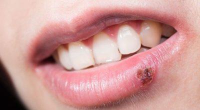 herpes-labial-oral-herpes