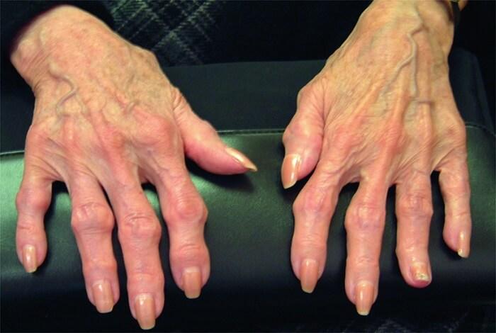 huesos-normales-articulaciones-grieta-mucho