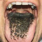 lengua-negra