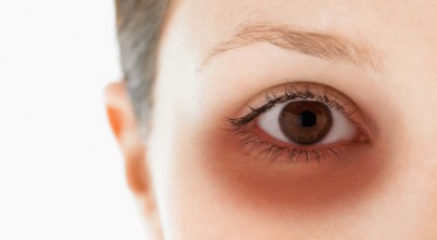 manchas-blancas-ojos-circulos-oscuros