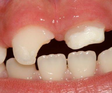 procedimiento-de-reparacion-de-dientes-astillados