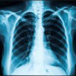 Tiempo de recuperación de la fractura costal y protocolo de tratamiento