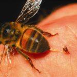 ¿Cuál es el remedio casero para Red Wasp Sting?