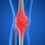 Cirugía de reemplazo de cartílago de rodilla