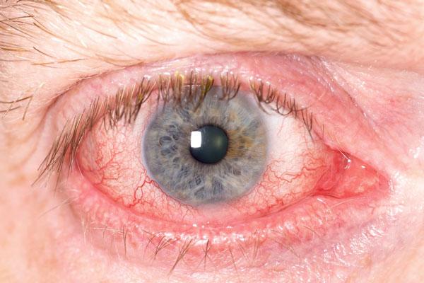 sarcoidosis-ojos-problemas