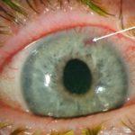 Signos y síntomas agudos de glaucoma