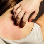 sintomas-alergia-al-gluten