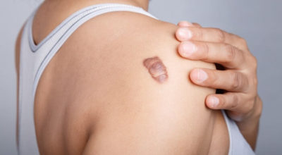 tratamiento-cicatriz-tejido