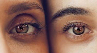 Ojeras bajo los ojos