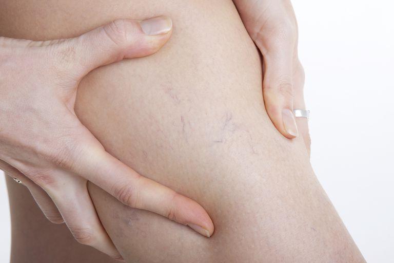 varices-venas-causas-sintomas