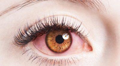 vision-periferica-perdida-un-ojo