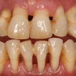 enfermedad-periodontal-adultos-mayores
