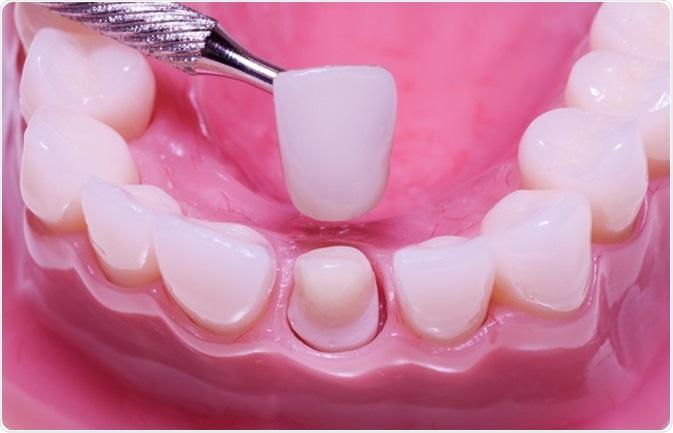 procedimiento-de-llenado-de-dientes