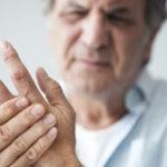 Artritis reumatoidea y problemas dentales