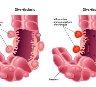 dieta-diverticulitis