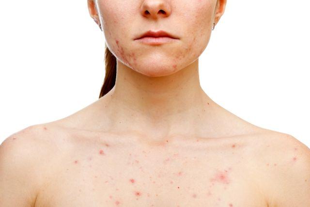 cuales-son-los-diferentes-tipos-de-acne