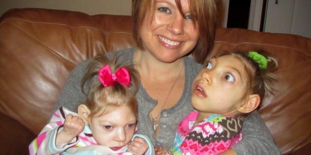 esperanza-de-vida-de-la-microcefalia