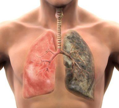 metastasis-cerebrales-por-cancer-de-pulmon