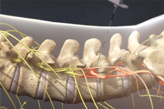 inyeccion-epidural-de-esteroides