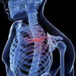 Síntomas y tratamientos de la fractura de clavícula