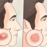 tumor canceroso en el cuero cabelludo