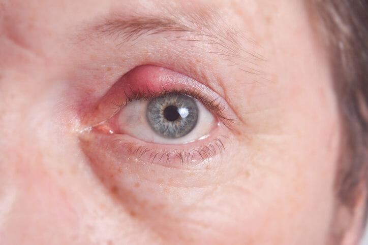 Descarga ocular para niños pequeños